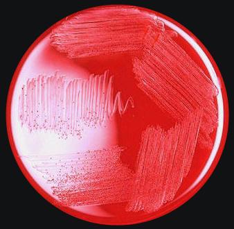 Vibrio Parahemolyticus 187 Gram Negative Bacteria 187 Pathogen