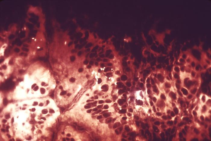 Shigella boydii bacteria cultivated on a hektoen enteric agar surface