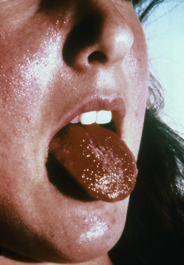 Kawasaki Disease Strawberry Tongue. strawberry tongue,kawasaki