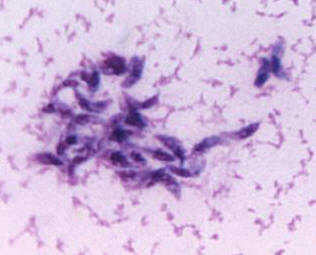 Toxoplasma gondii in mouse ascitic fluid.